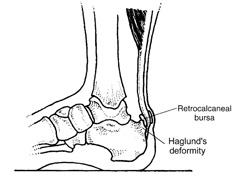 So bekommen Sie Achillessehnenverletzungen in den Griff