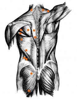 Die Abbildung zeigt einige der typischen Triggerpunktlokalisationen unseres Körpers. ©imipolex / Fotolia (angepasst von Take The Magic Step®)